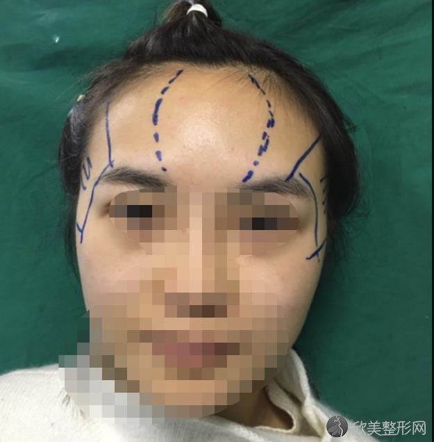 成都星美宝岛美容整形诊所杨汉城医生注射太阳穴