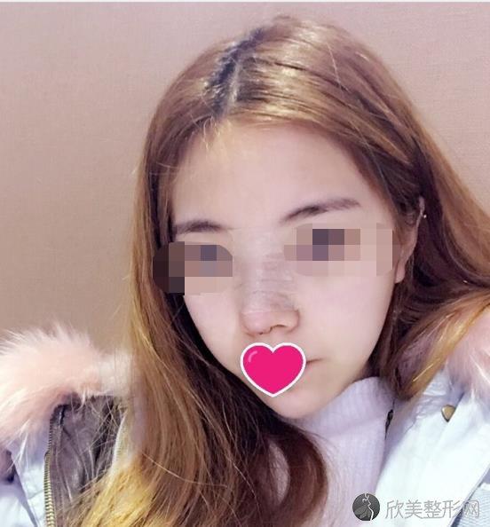 成都艾米丽医疗美容门诊部李江医生注射隆鼻恢复期