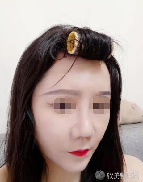 成都艾米丽潘红伟医生做面部自体脂肪填充除皱之后