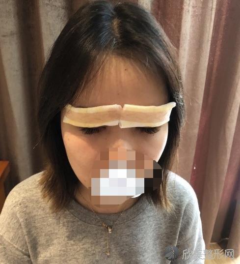 上海华美医疗美容医院董亮医生做全切双眼皮恢复