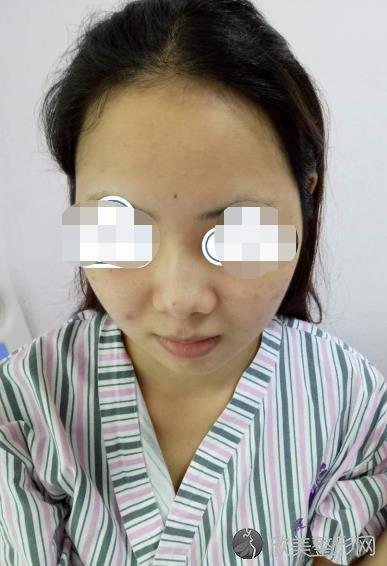 北京美莱医疗美容医院宫风勇医生做隆鼻