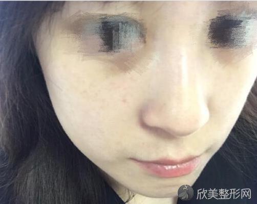 上海华美医疗美容医院刘斌医生做激光祛斑之后