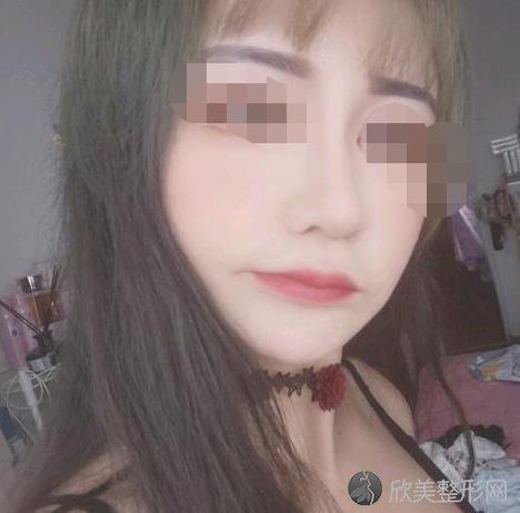 上海华美医疗美容医院程梓宁医生激光祛痘之后