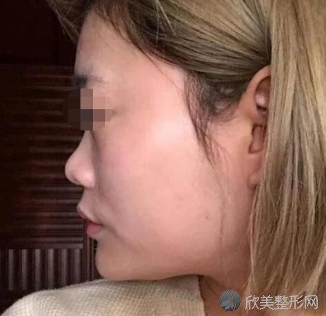 北京圣嘉荣医疗美容医院的周松医生做隆鼻