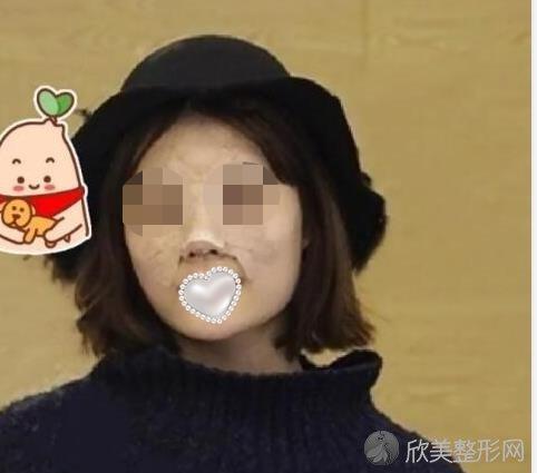 北京圣嘉荣医疗美容医院的周松医生做隆鼻恢复