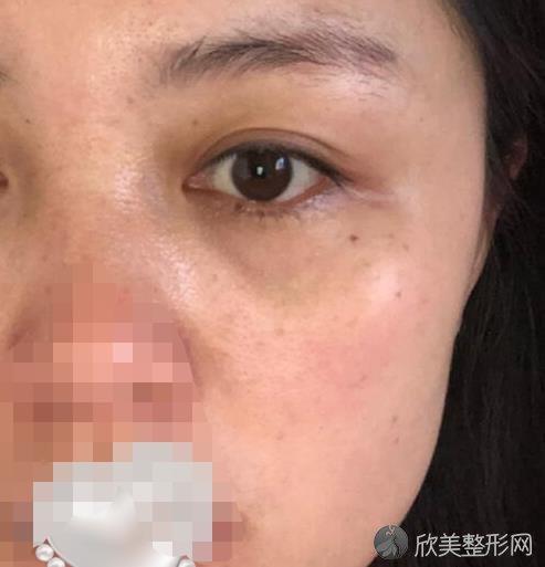 上海华美医疗美容医院常春医生做激光祛斑之前