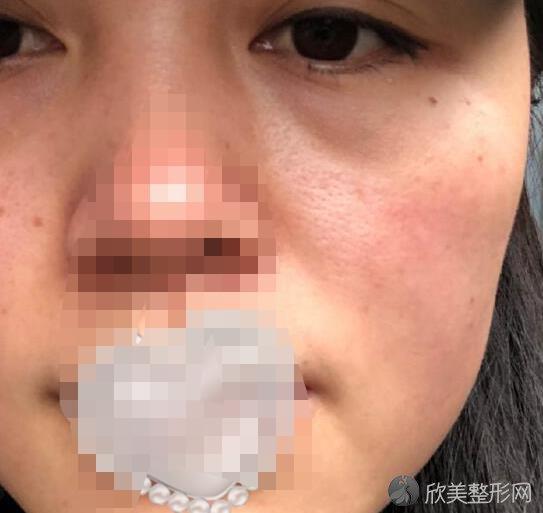 上海华美医疗美容医院常春医生做激光祛斑过程