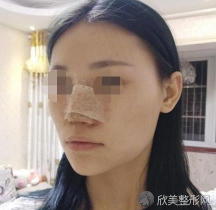 上海华美医疗美容医院徐文龙医生做隆鼻恢复中