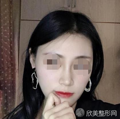 上海华美医疗美容医院徐文龙医生做隆鼻之后