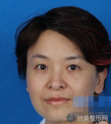 上海第九人民医院张群医生