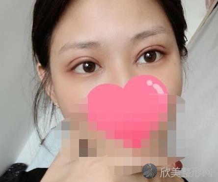 上海华美医疗美容医院李健医生做眼综合之后