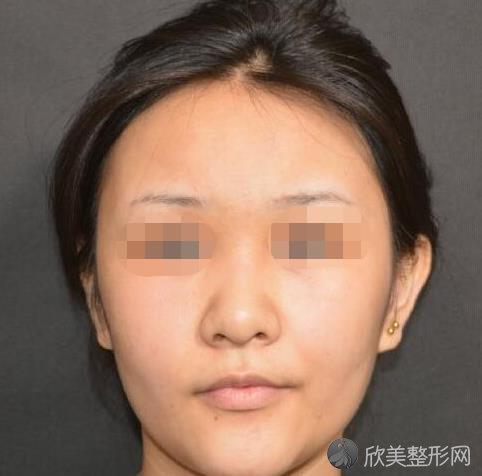 上海第九人民医院整复外科王炜医生做隆鼻之前