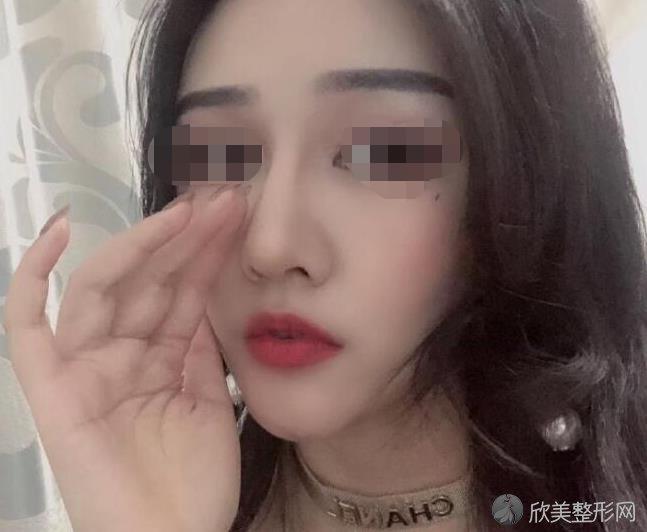 上海第九人民医院整复外科王炜医生做隆鼻术后56天