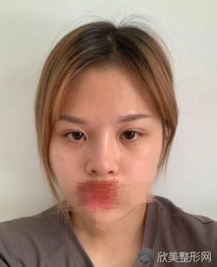 上海仁济医院整形科范志宏医生做双眼皮之前