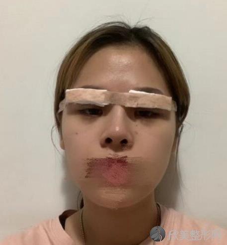 上海仁济医院整形科范志宏医生做双眼皮恢复中