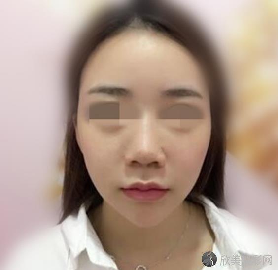 八大处整形医院整形科王永前医生做隆鼻手术