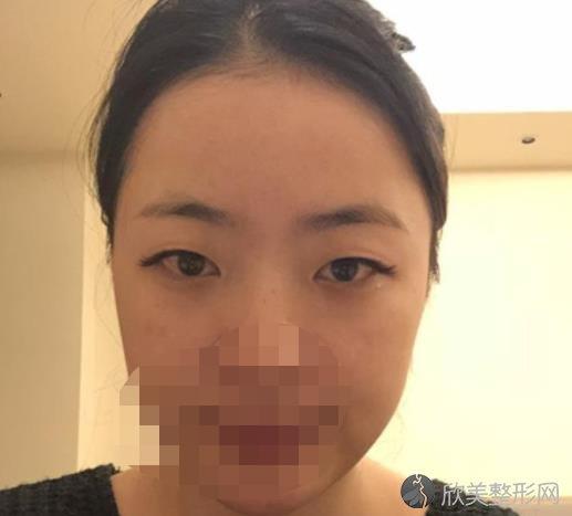 中山大学第一附属医院整形外科许扬滨做双眼皮之前