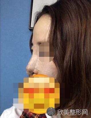 上海第九人民医院整复外科王涛医生做鼻手术之前