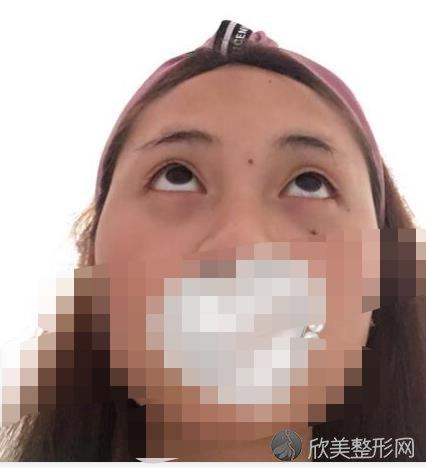 北京大学深圳医院整形外科何君君医生做去眼袋之前