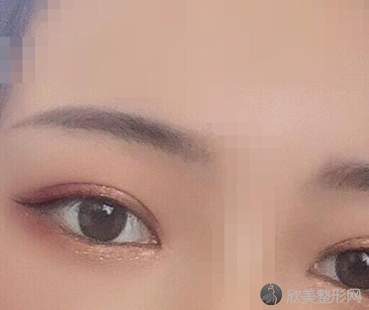 北京301医院整形修复科陶然医生做双眼皮之后