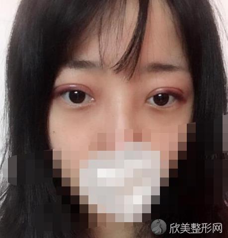 北京联合丽格刘越医生做双眼皮之后