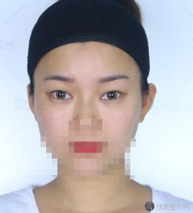 北京联合丽格王岩医生做双眼皮之前