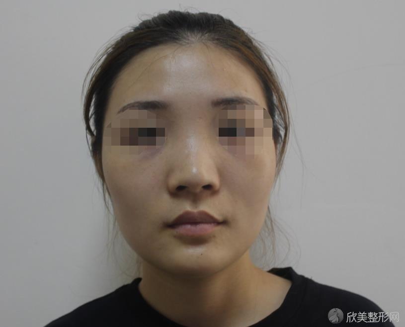 北京联合丽格师俊莉医生做隆鼻之前