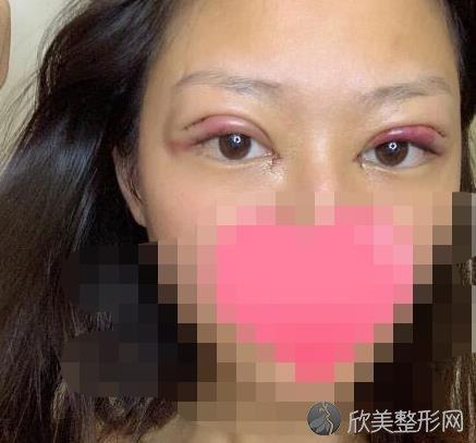 北京联合丽格张菡医生做双眼皮