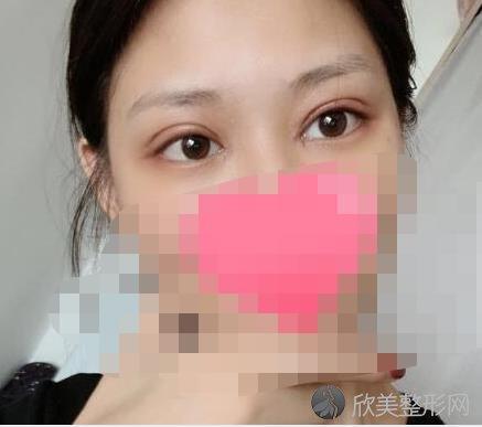 北京联合丽格张菡医生