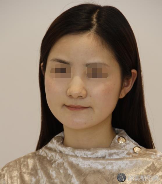北京联合丽格通拉嘎医生做祛斑之前