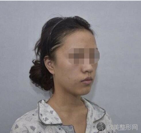 西安西京医院整形科崔江波做面部填充之前