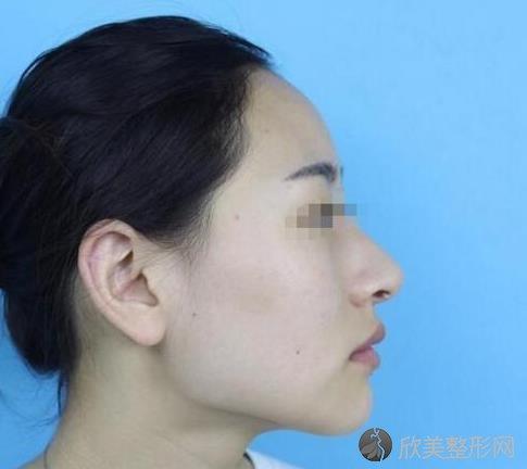 王大勇医生做下颌角整形之前