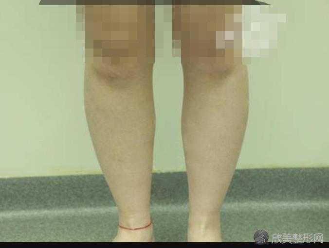 北京协和白明整形医院美容外科青年委员做小腿吸脂