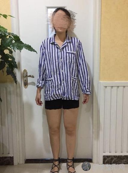 北京协和整形医院赵茹大夫做大腿吸脂