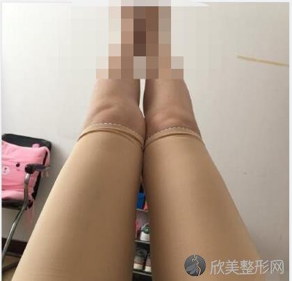北京协和整形医院赵茹大夫做大腿吸脂之后