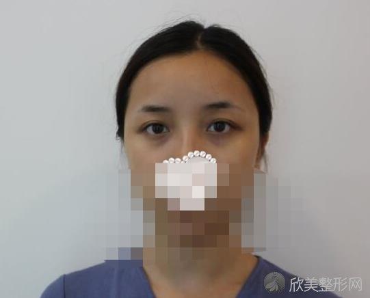 北京协和黄渭清医生做自体脂肪填充面部之前