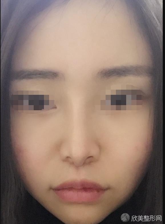 北京协和黄渭清医生做自体脂肪填充面部术后65天