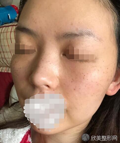 激光祛斑术后5天