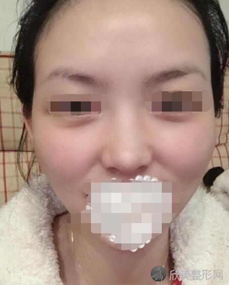 激光祛斑术后30天