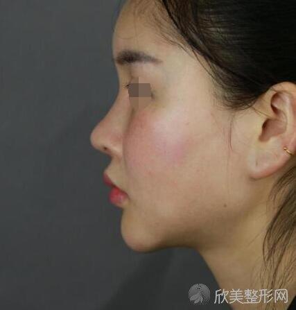 下颌角磨骨术前