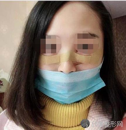 西京医院魏思明医生去眼袋之后