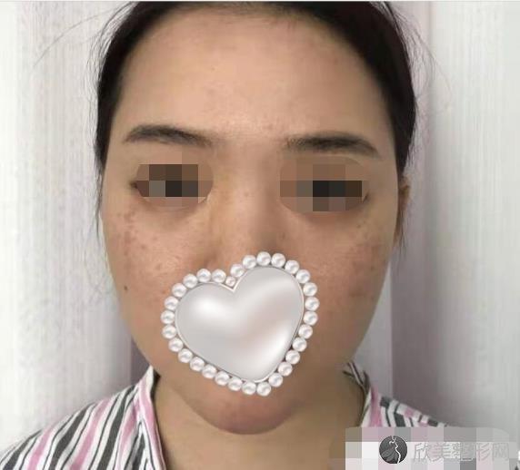 杭州时光医疗美容医院王立刚做鼻综合整形之前