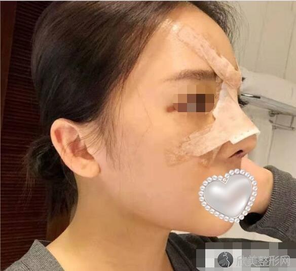 杭州时光医疗美容医院王立刚做鼻综合整形之后