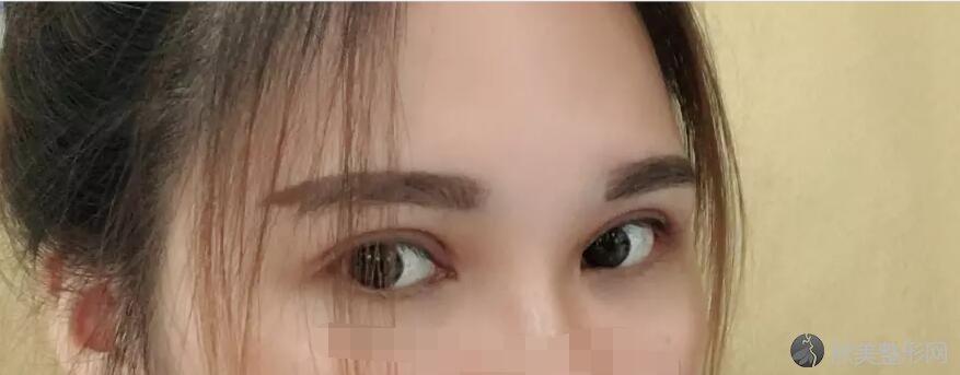 双眼皮术后30天