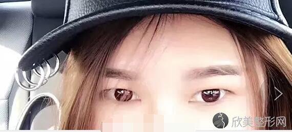 双眼皮术前