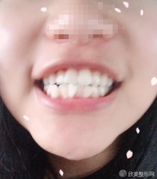 牙齿矫正术前