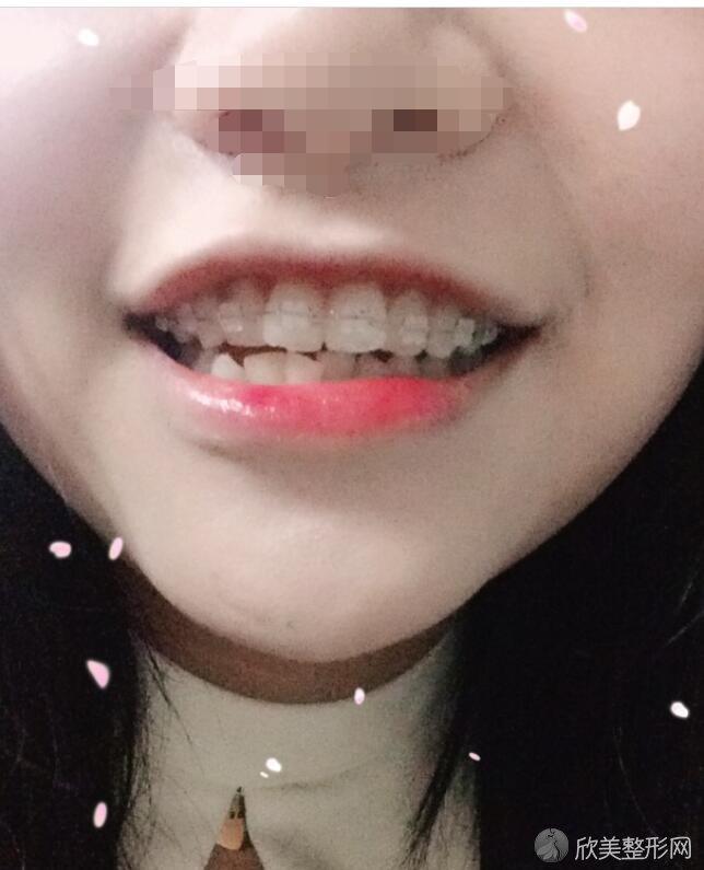 牙齿矫正术后20天