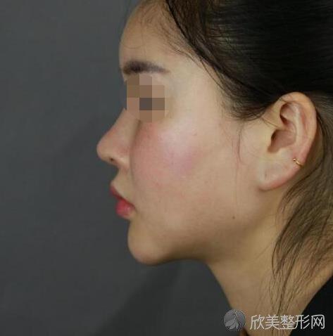 赵振民医生做下颌骨改形手术之前