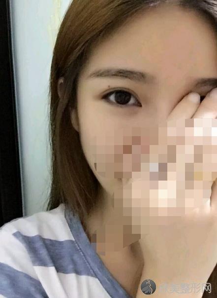 北医三院整形外科李东医生做双眼皮之后