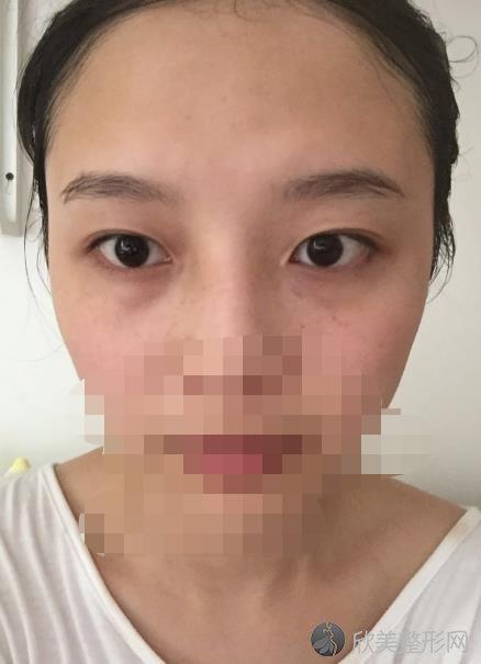 郑州辰星医疗美容医院刘芳医生做双眼皮之前